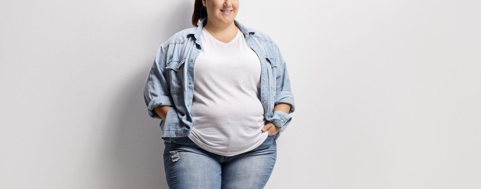 Eine adipöse junge Frau: Adipositas kann während der Schwangerschaft und Geburt für Komplikationen sorgen