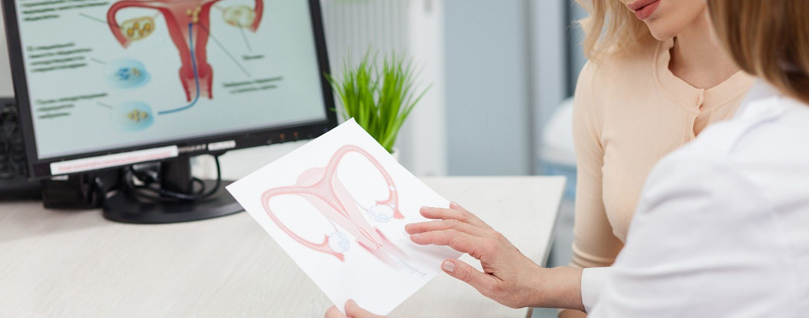 Frau spricht mit Ärztin über die Anzeichen und die Behandlung einer Tubargravidität: Risiko Eileiterschwangerschaft.
