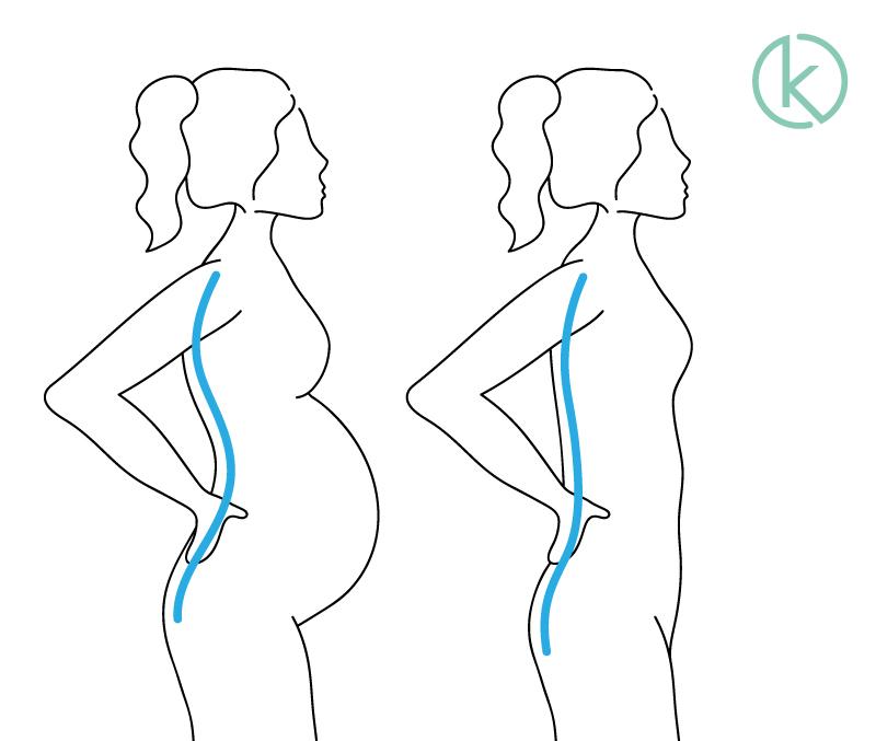 Grafische Darstellung einer Schwangeren mit Hohlkreuz und einer nicht schwangeren Frau mit optimaler Wirbelsäulenkrümmung.